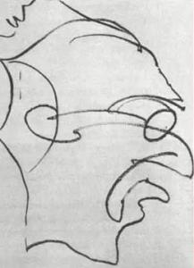 """2:35 ore dopo la prima doseIl paziente esegue in fretta un altro disegno. """"Farò il disegno in un batter d'occhio... senza fermarmi... una sola linea continua..."""" Una volta completato il disegno, il paziente inizia a ridere, poi si spaventa per qualcosa sul pavimento."""